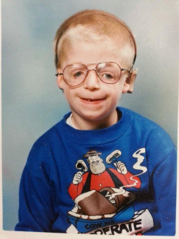 """Jako kluk si užil """"svoje"""" nejen kvůli tváři, ale také kvůli brýlím Foto:"""