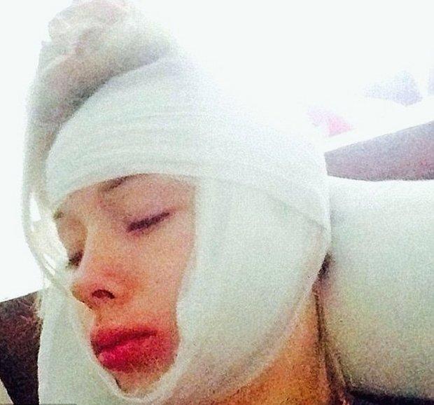 Valeria po napadení v loňském roce Foto: