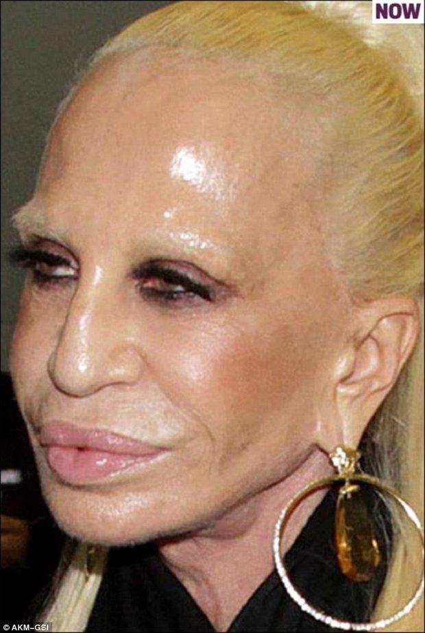 Dnes je to jen smutný pohled na ženu, která neumí stárnout Foto: