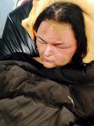 Hlavu měla velkou jako ragbyový míč a bála se, že oslepne nebo zemře. Foto: reprofoto Mirror.co.uk
