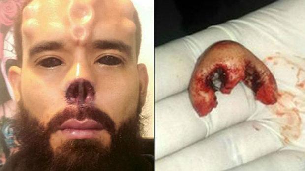 Henry Damon dovedl svou přeměnu do extrému, když si nechal uříznout kus nosu.  Foto: